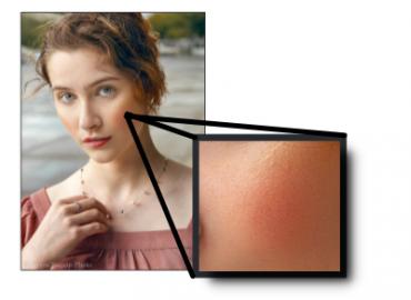 texture dans la peau